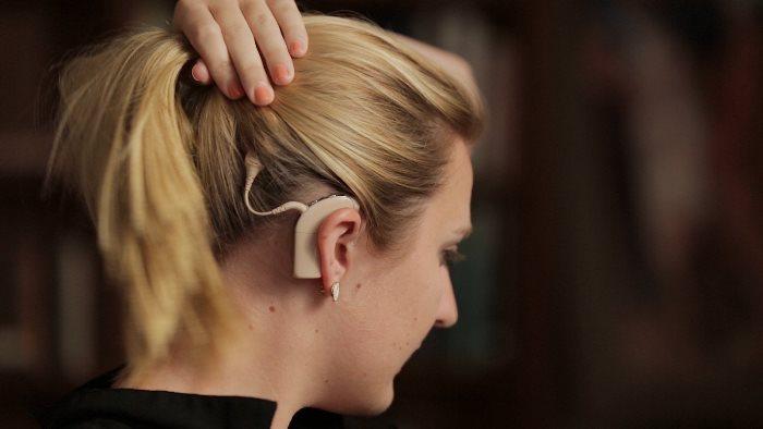 درمان کم شنوایی با کاشت حلزون